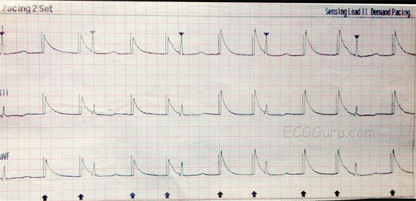 12-Lead ECG case: When is a heartbeat not a mechanical