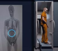 Catch more contraband with X-ray technology