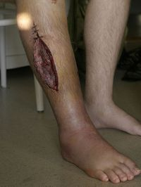 Understanding compartment syndrome by type