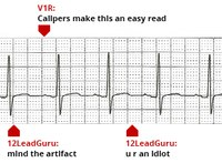 Social bullying mars release of new live-streaming cardiac monitor
