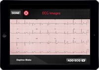 STEMI: 10 things you need to know to save lives
