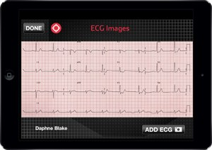 An ECG displayed on a tablet using Pulsara's software (Photo courtesy of Pulsara)