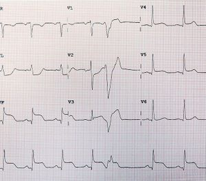 Like other HIRTSC, clinical outcomes for STEMI are improved when definitive care is initiated as soon as possible. (Photo/Wikimedia Commons)
