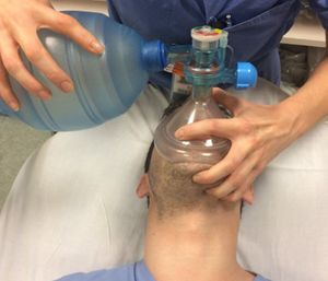 The BVM and supplemental oxygen are capable of saving our patient's life, but only if we can recognize and overcome the common errors in their use. (Photo/SAEM.org)