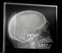 EMS tips to listen, communicate with aphasia patients