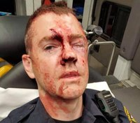 Police release photo of bloodied LEO beaten during arrest attempt