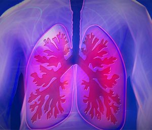 Chronic obstructive pulmonary disease affects approximately 32 million Americans. (Photo/Pixabay)