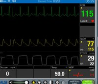 Is alarm fatigue causing prehospital patient care errors?