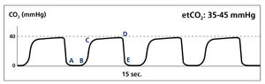 A normal waveform. Image courtesy of Covidien.