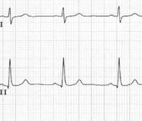 Moving beyond the 'standard' 12-lead ECG