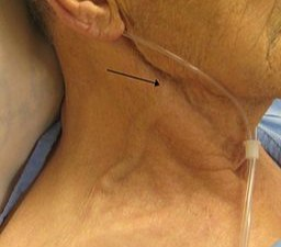 A person with congestive heart failure who presented with an exceedingly elevated JVP, the arrow is pointing to the external jugular vein, however, JVD is measured by the internal jugular vein which can also be seen here (Courtesy/James Heilman, MD, https://commons.wikimedia.org/wiki/File:Elevated_JVP.JPG)