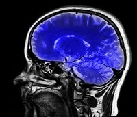 5 things cops need to know about traumatic brain injury