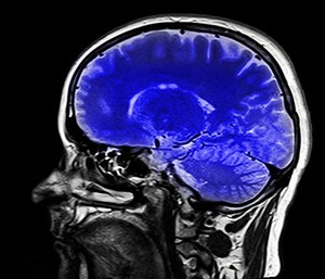Blast shockwaves can create a a sharp increase in pressure that moves through the brain, damaging brain cells, compromising blood vessels and causing brain inflammation. (Photo/Pixabay)