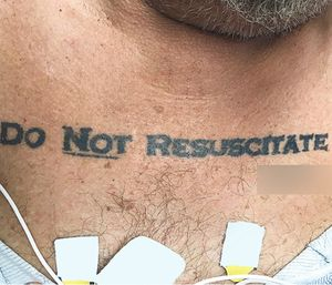 If a patient has a DNR tattoo, you should be on the lookout for other clues that the patient does not wish to have life saving measures performed. (Photo/NEJM)