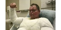 Texas volunteer fire chief recovering at burn center