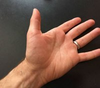 How to find and assess a radial pulse