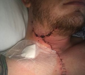 The bullet that nearly killed Sterrett ripped through his neck. (Photo/Tim Sterrett)