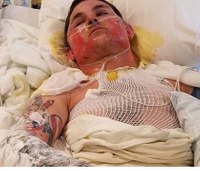 2 Nev. firefighters suffer serious burns in wildfire