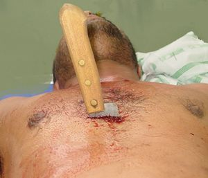 Removal of the knife is an absolute last resort, as it likely could contribute to further exsanguinating hemorrhage. (Photo courtesy of Trauma.org)