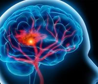 9 issues stroke systems of care must address to improve outcomes