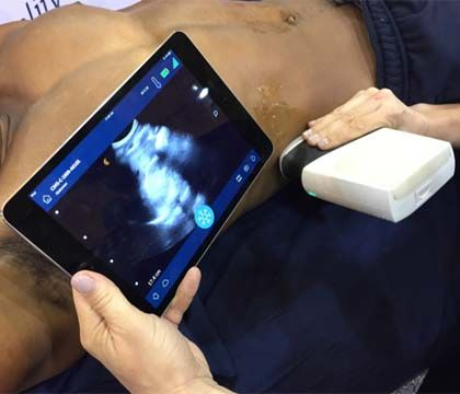 Prehospital ultrasound: Emerging technology for EMS