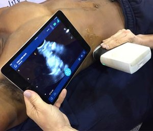 Prehospital ultrasound imaging will allow hospitals to better prepare to receive critically ill and injured patients. (Photo by Greg Friese)