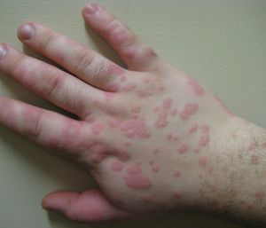 Valley fever is a fungal infection that can cause chest pains, coughing and bumps and rashes on the skin. (Photo/Wikimedia Commons)