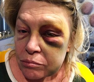 This Oct. 15, 2017, photo provided by the subject shows Pandora Lobacz, a teacher in Wisconsin's juvenile corrections system, who was injured in an Oct. 11 attack by a young inmate at the state's Lincoln Hills School in Irma, Wis. (Courtesy of Pandora Lobacz via AP)