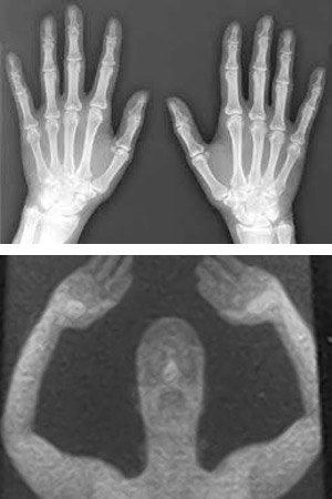 The truth about correctional facility backscatter X-ray body scanners